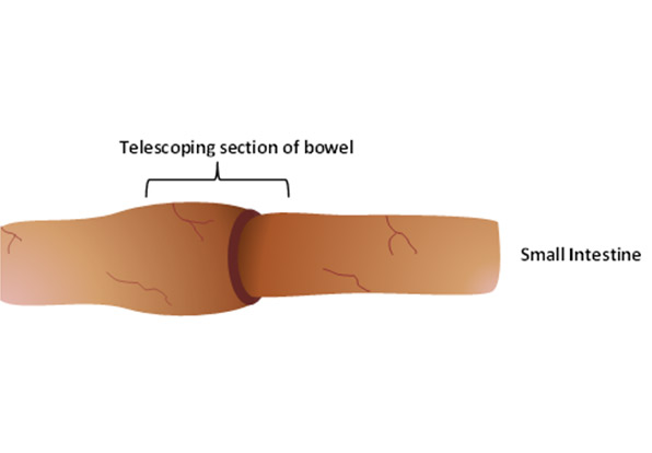 Telescoping section of bowel
